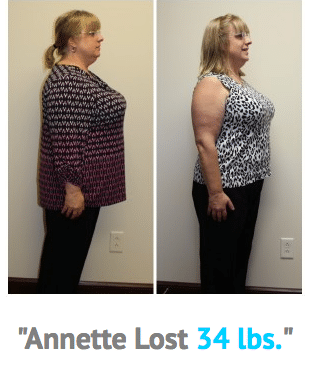 Weight Loss Rochester NY Annette Testimonial