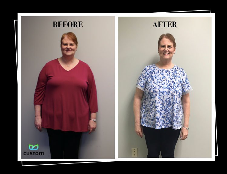 Weight Loss Rochester NY Cathleen Testimonial