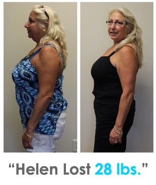 Weight Loss Rochester NY Helen Testimonial