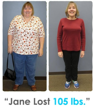 Weight Loss Rochester NY Jane Testimonial