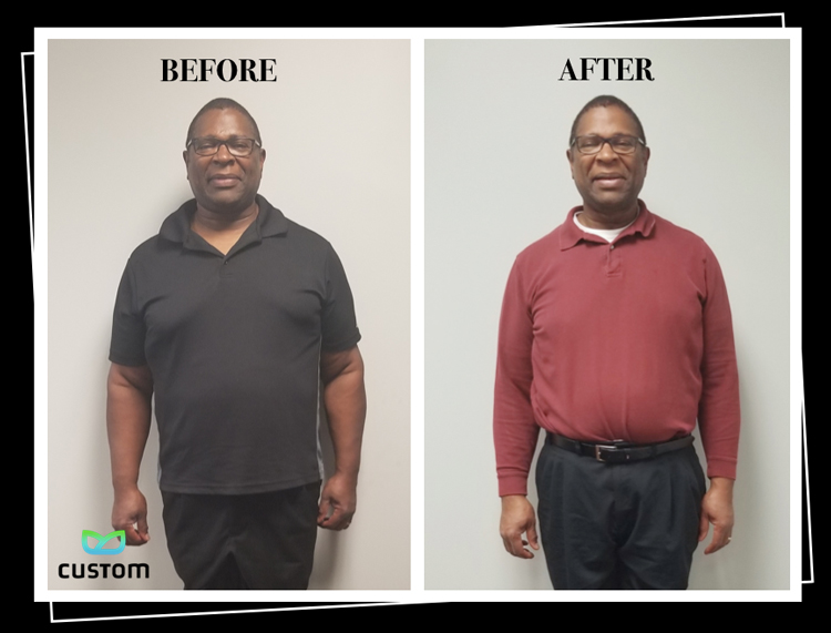 Weight Loss Rochester NY Kevin Testimonial