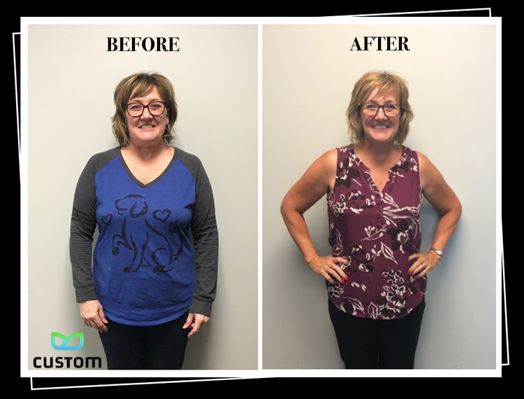 Weight Loss Rochester NY Leanne Testimonial