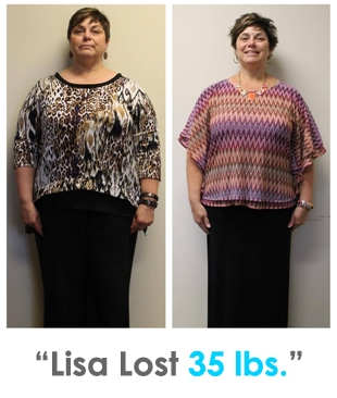 Weight Loss Rochester NY Lisa Testimonial