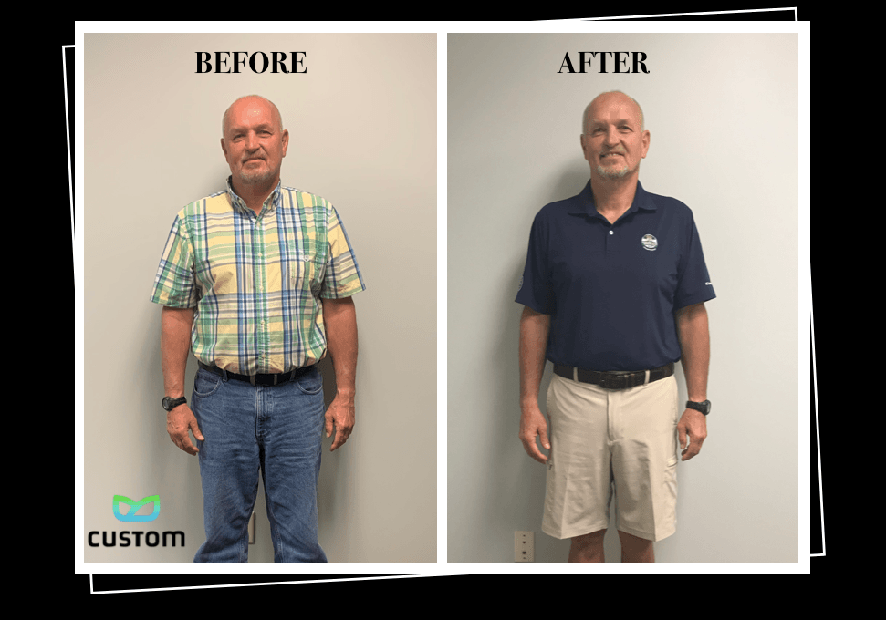 Weight Loss Rochester NY Older Man Testimonial