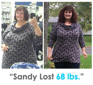 Weight Loss Rochester NY Sandy Testimonial