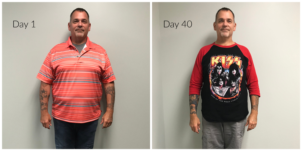 Weight Loss Rochester NY Before and After
